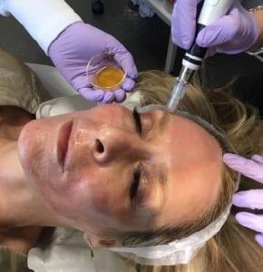 Vampire Facial - Facial Renaissance
