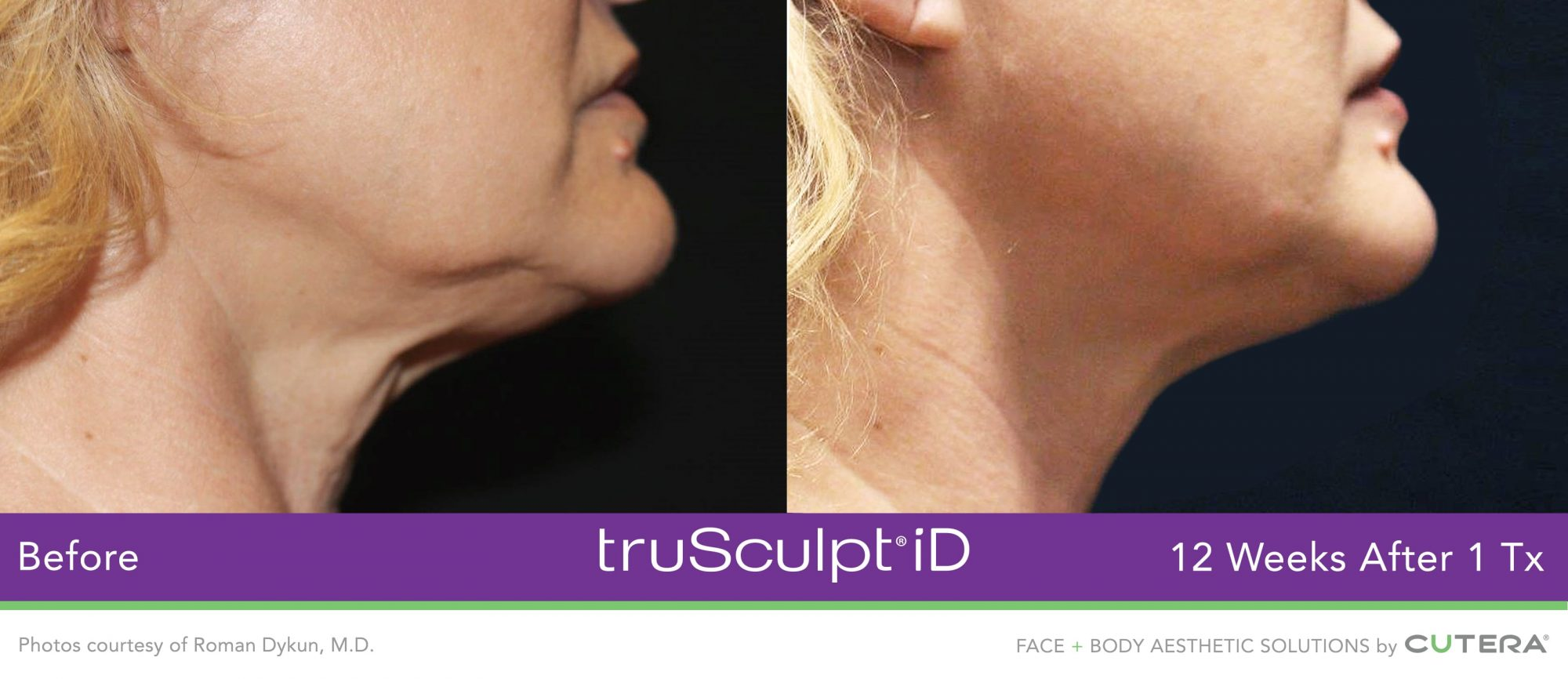 woman's chin before and after truSculpt 3D